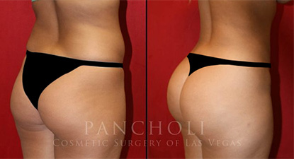 body cosmetic surgery result - Pancholi