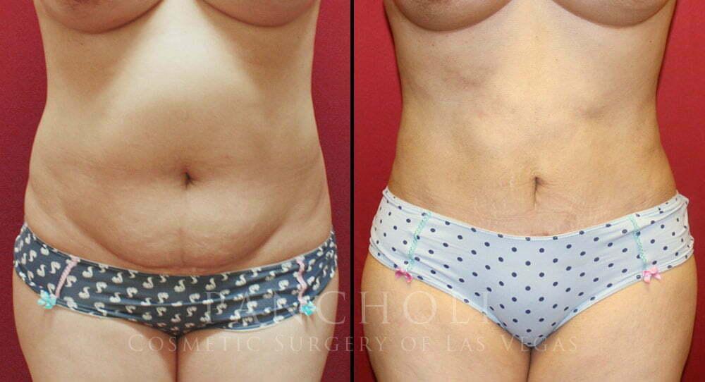 Tummy Tuck 3328