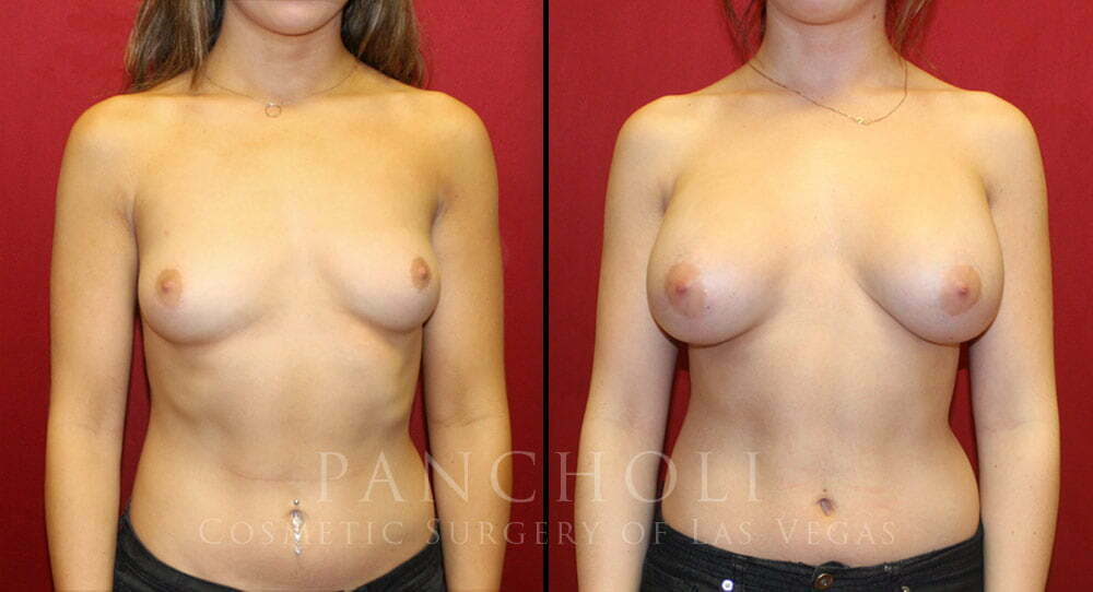 Breast Augmentation 5152