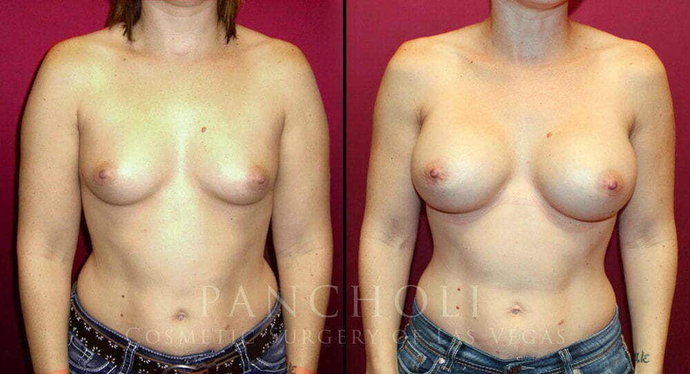 Breast Augmentation 3967