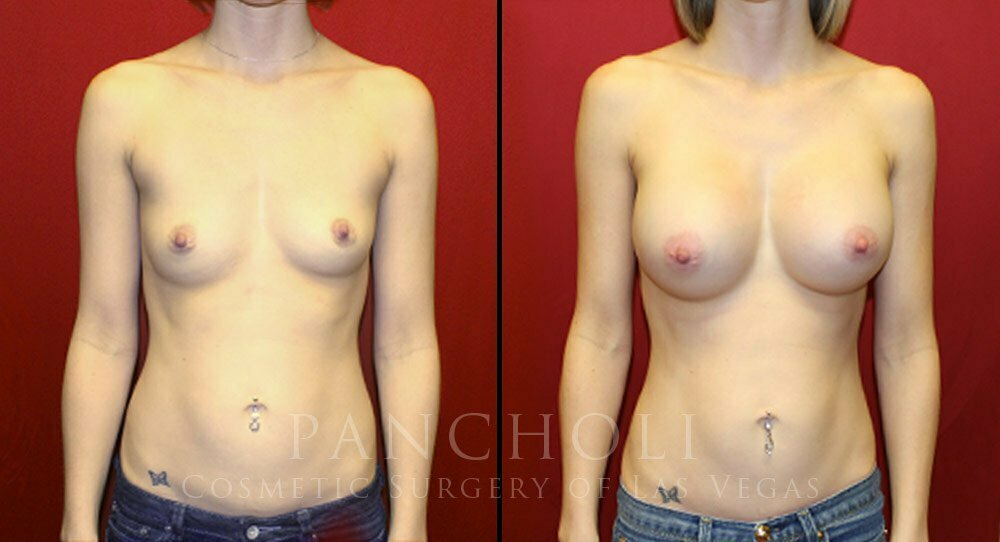 Breast Augmentation 4132