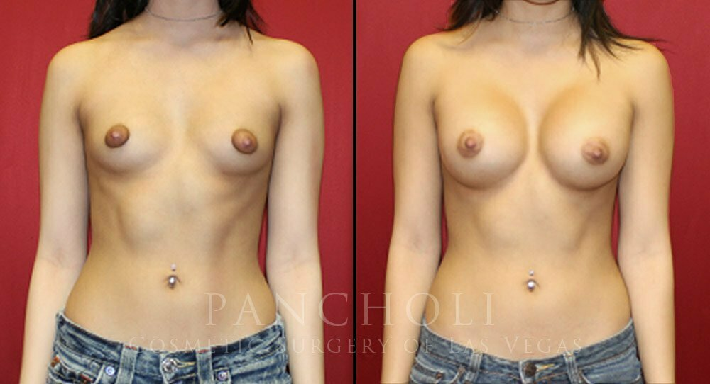 Breast Augmentation 4449