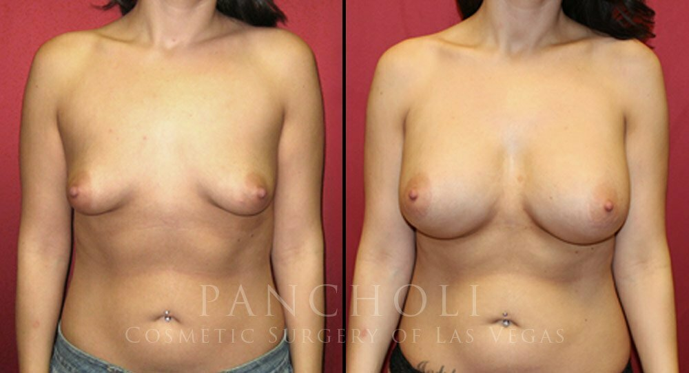 Breast Augmentation 3432