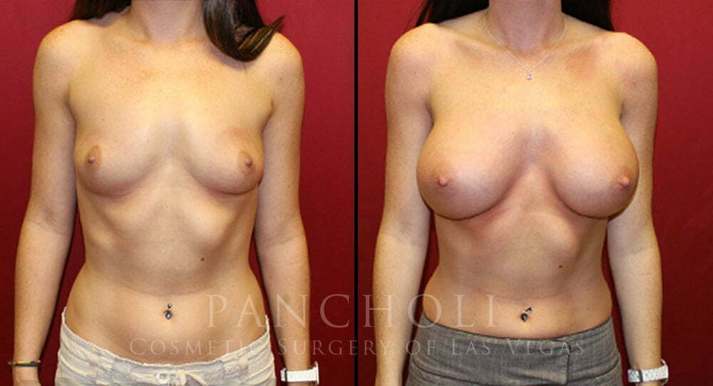 Breast Augmentation 4703