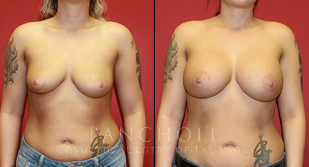 Breast Augmentation 4546