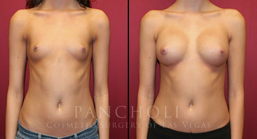 Breast Augmentation 4302