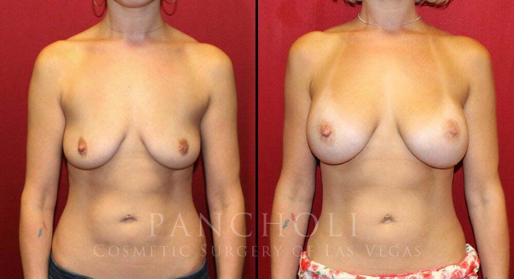 Breast Augmentation 5290