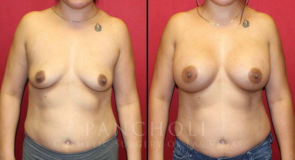 Breast Augmentation 3911