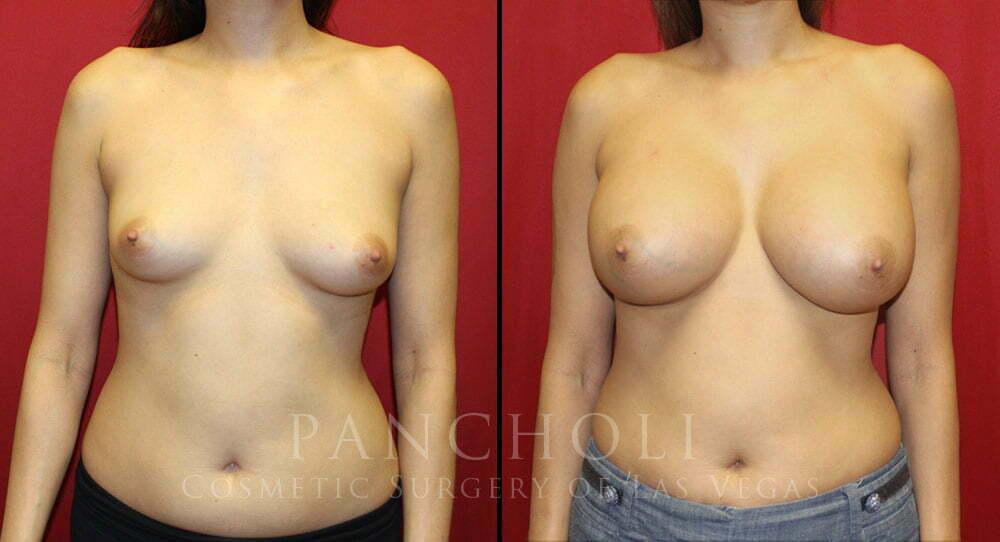 Breast Augmentation 5214