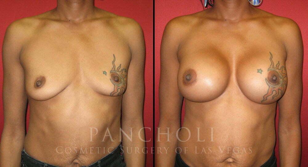 Breast Augmentation 2650