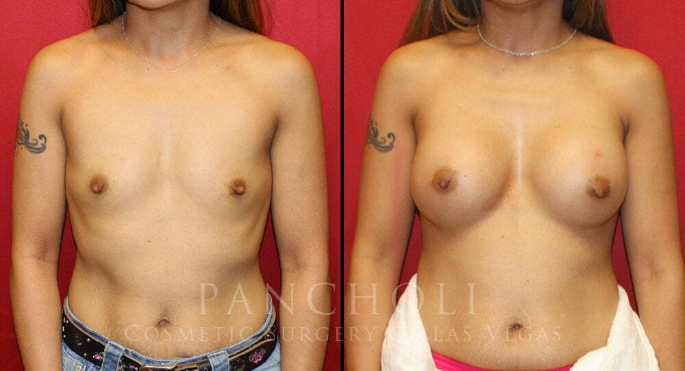 Breast Augmentation 5464