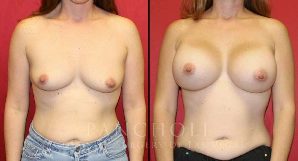 Breast Augmentation 5408