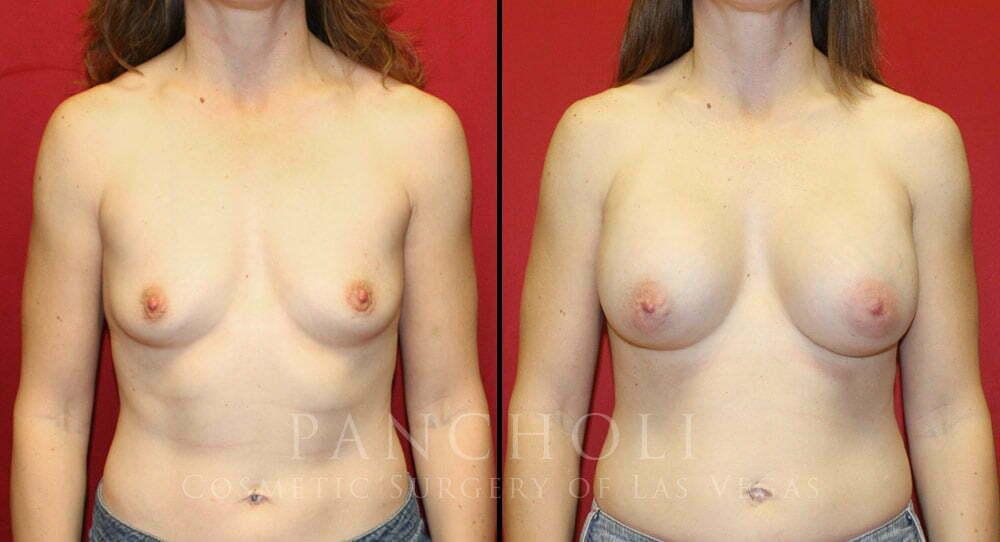 Breast Augmentation 5358