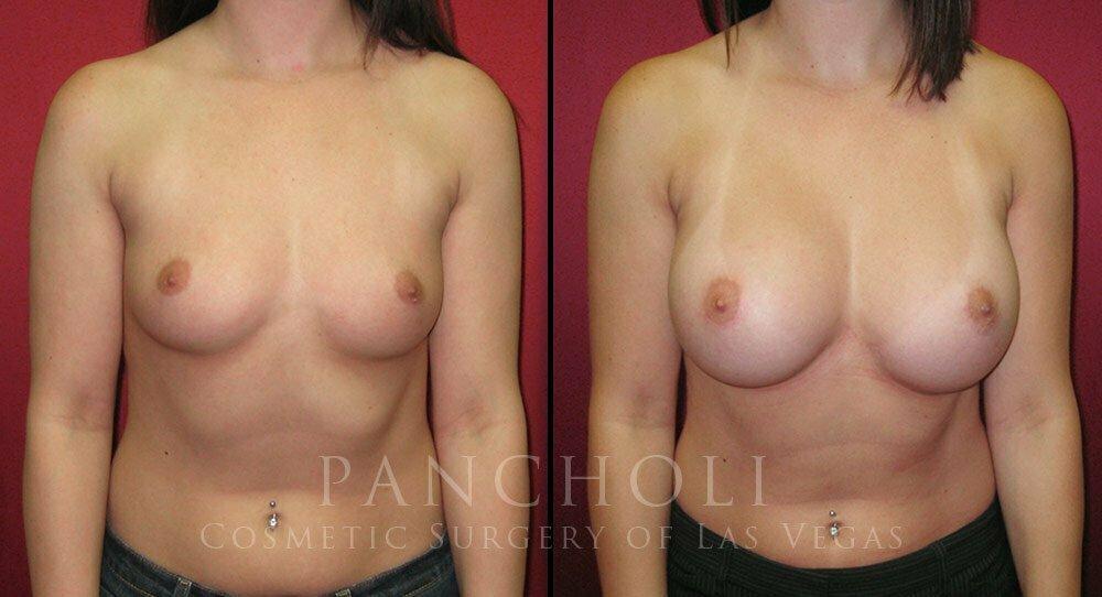 Breast Augmentation 3279