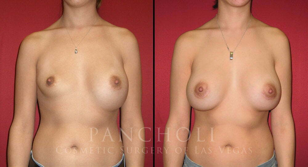Las Vegas Breast Implant Revision