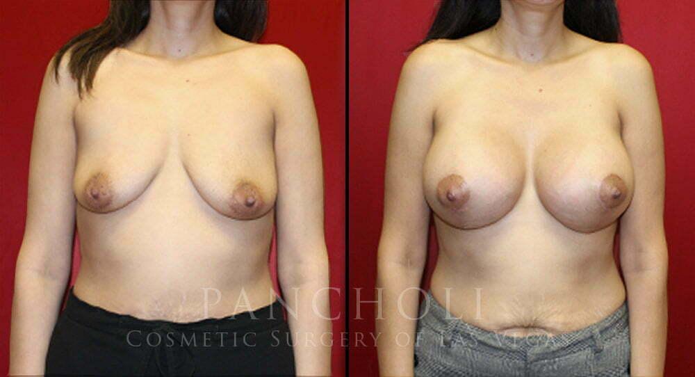 Las Vegas Breast Augmentation with Lift