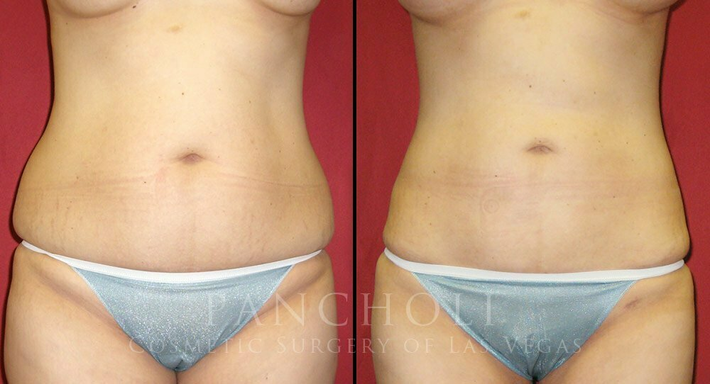 Las Vegas Liposuction