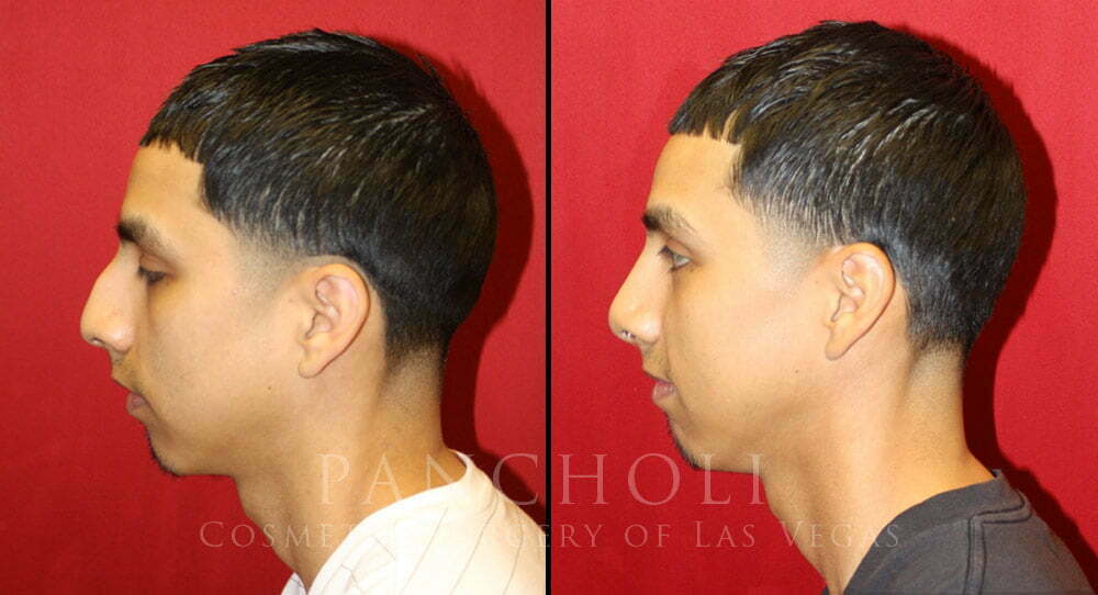 male nose job las vegas before and after