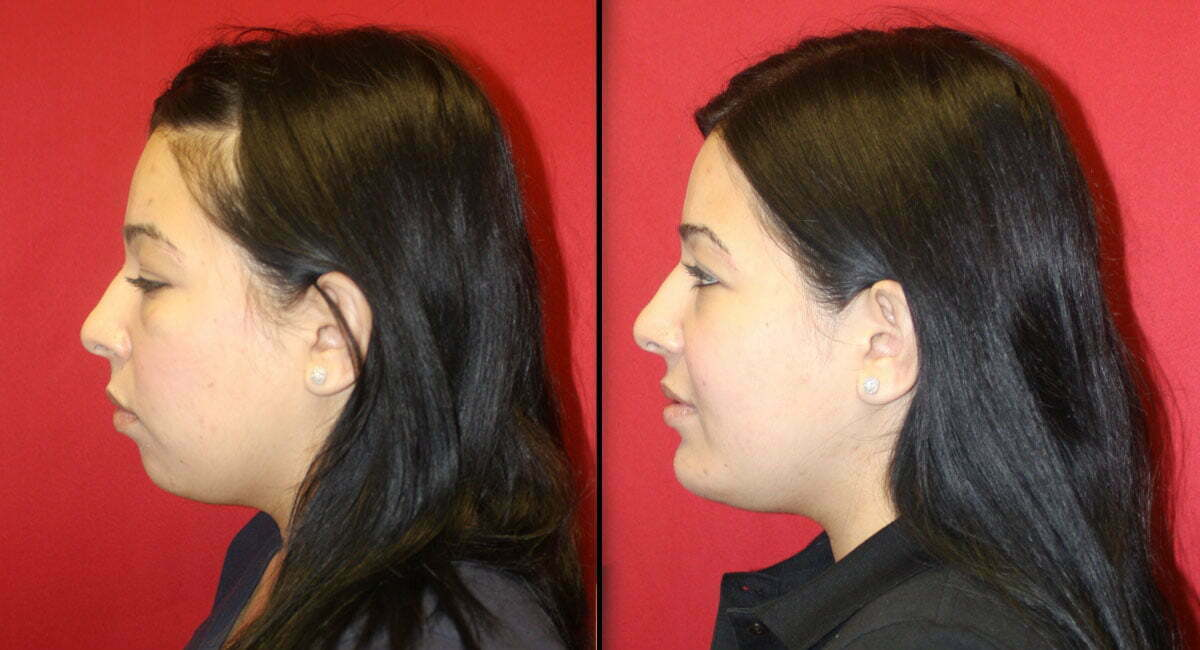 Las Vegas Chin Implant