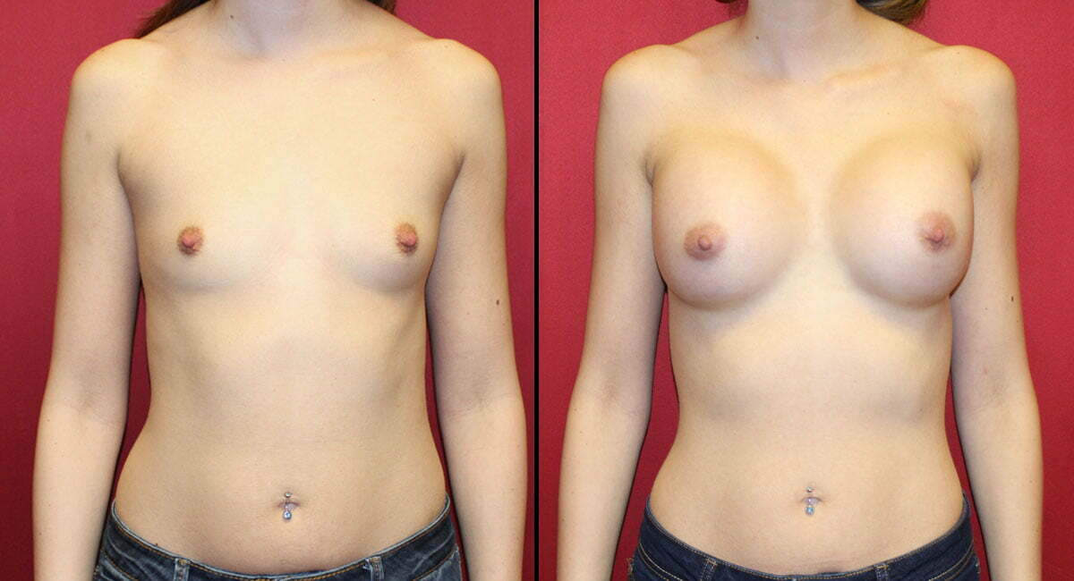 Breast Augmentation 5127