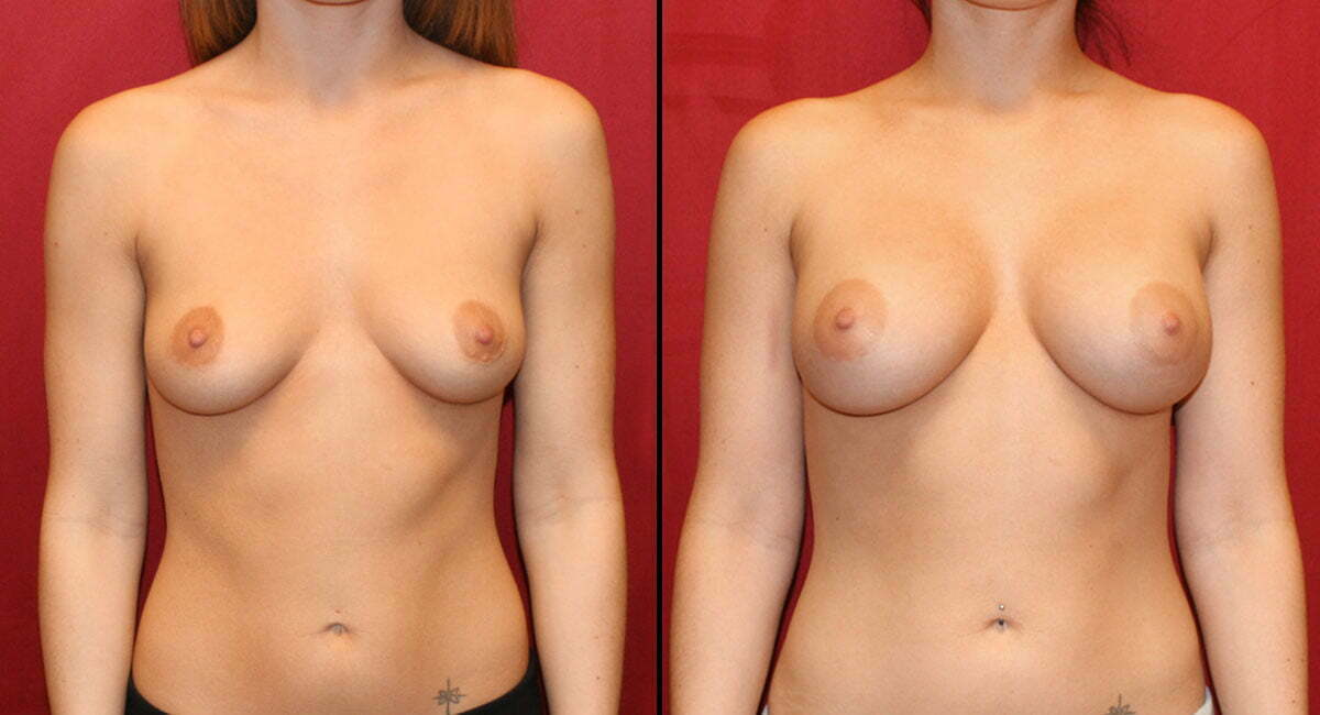 Breast Augmentation 5329