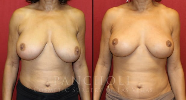 Breast Lift Before and After Gallery