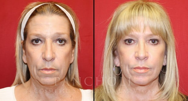 Face Lift Before and After Gallery