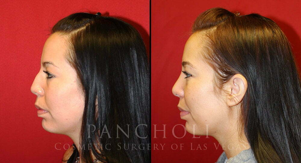 nose job las vegas before and after