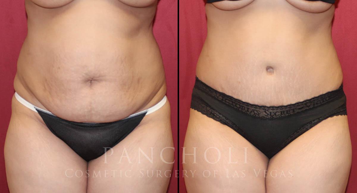 Tummy Tuck 5857