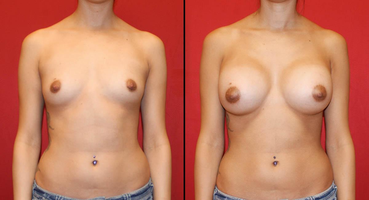 Breast Augmentation 6029