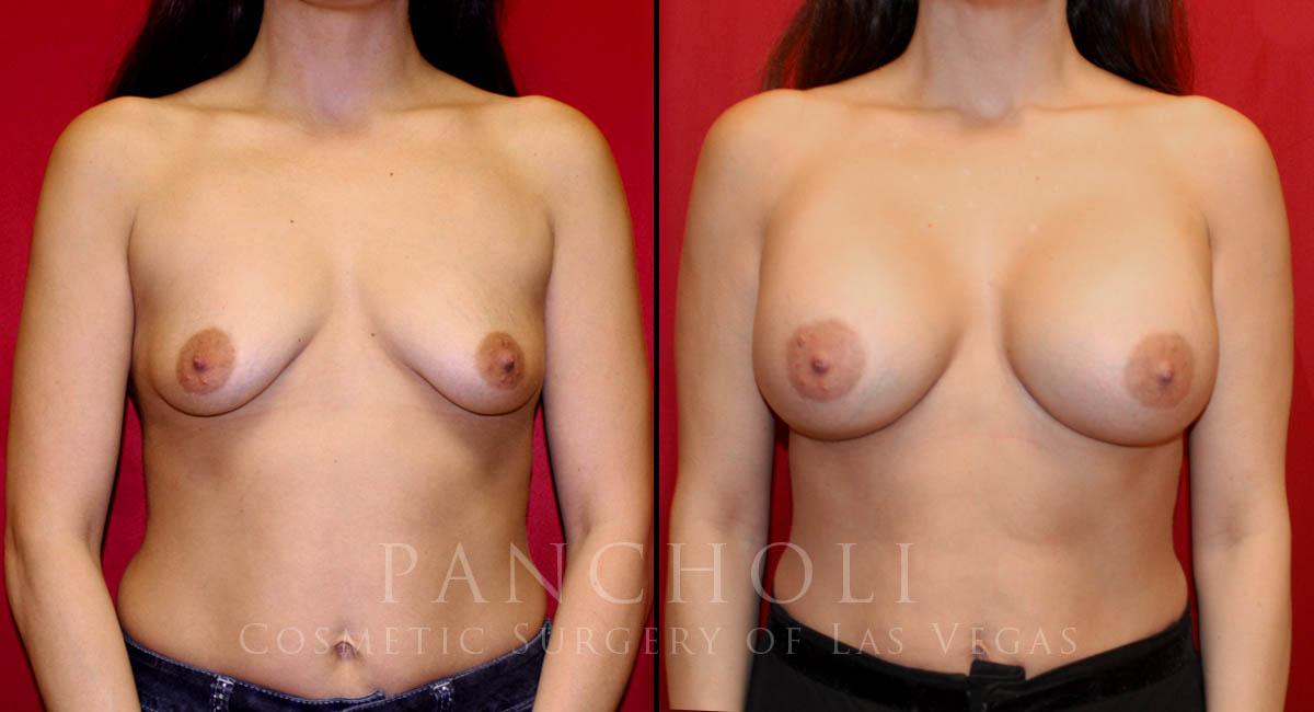 Breast Augmentation 6313