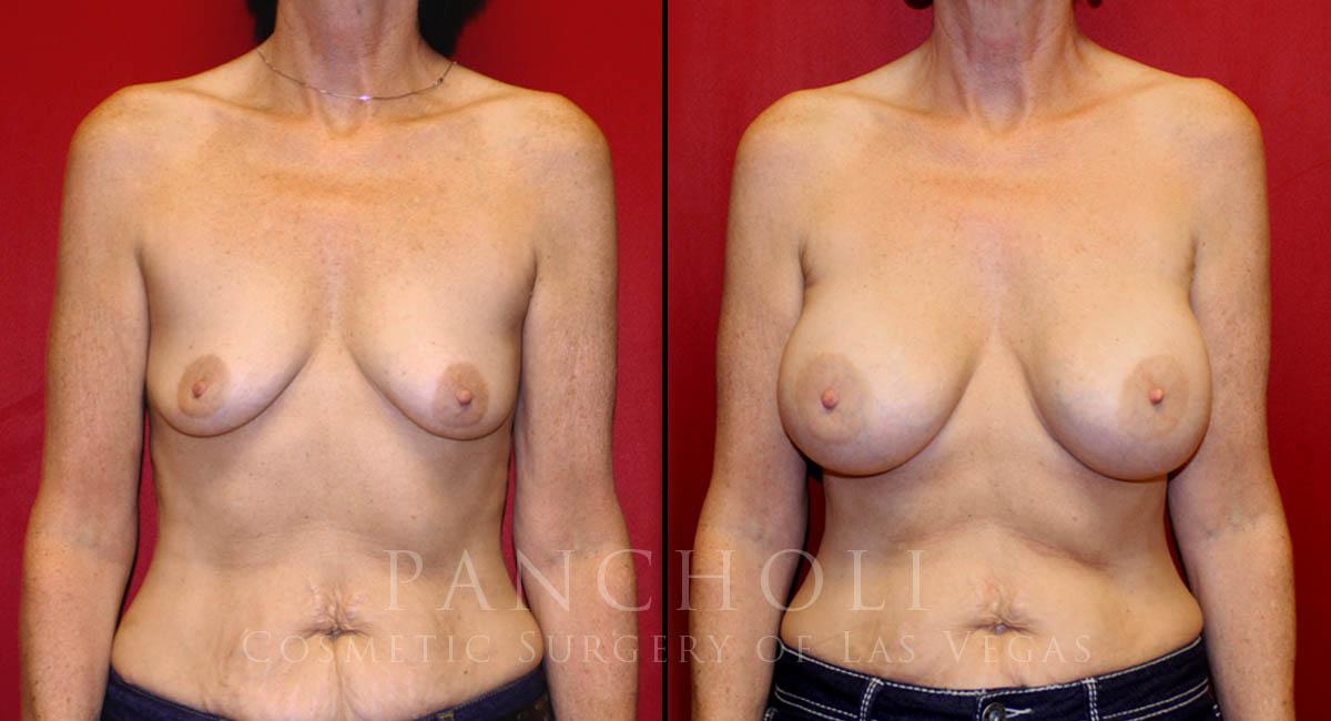 Breast Augmentation 6317
