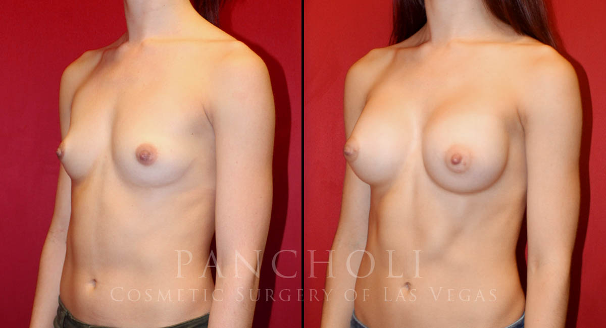 Las Vegas Breast Augmentation