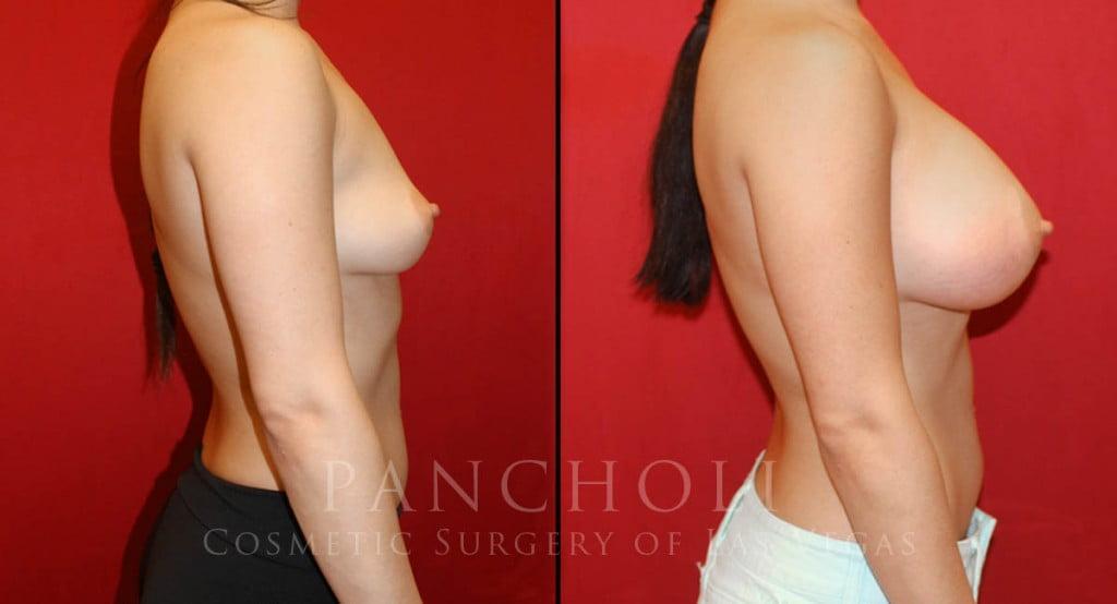 Las Vegas Breast Augmentation