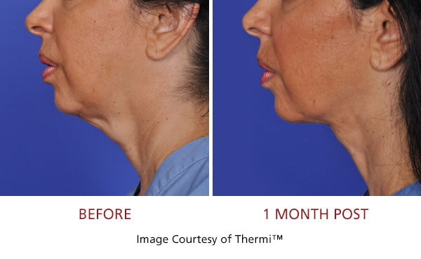 Thermi Before and After