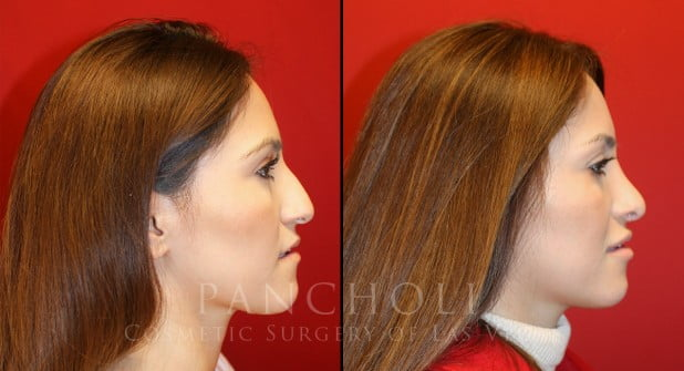 Eyelid Surgery Before and After Gallery