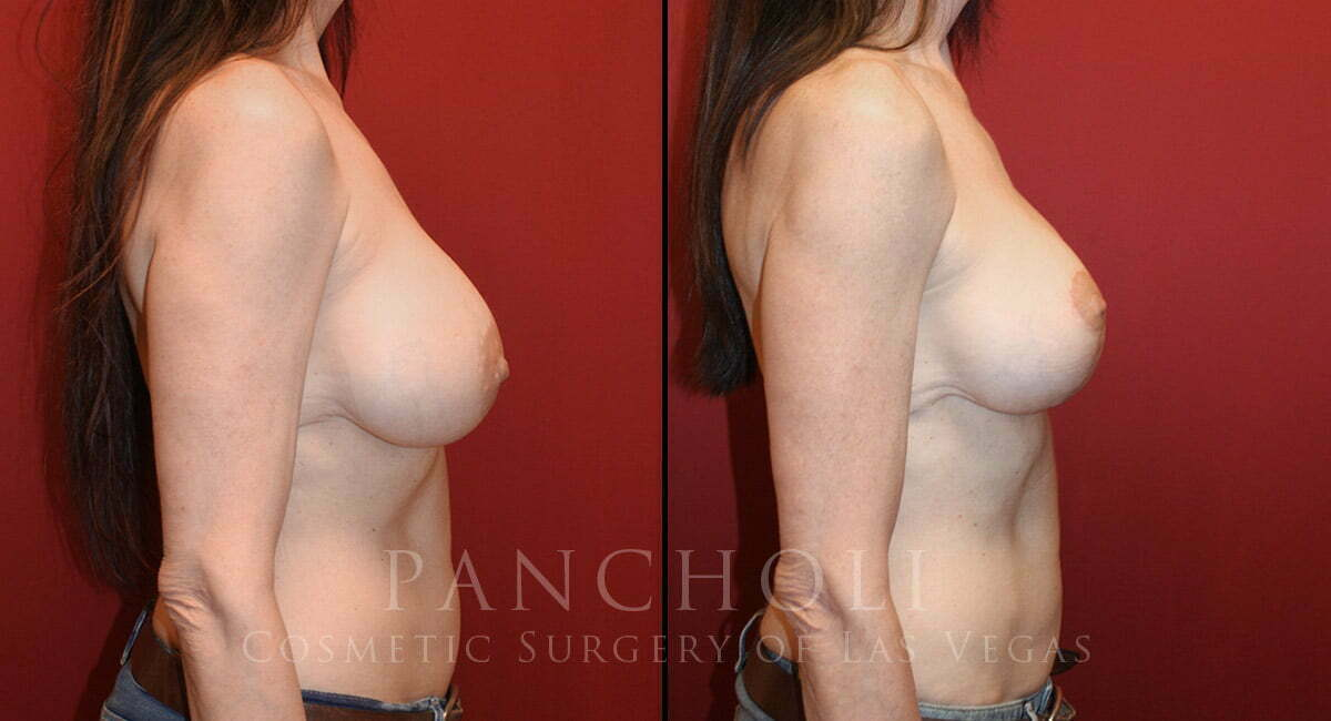 Las Vegas Breast Augmentation with Lift