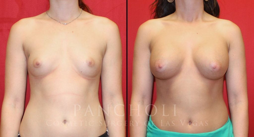 Breast Augmentation 6521