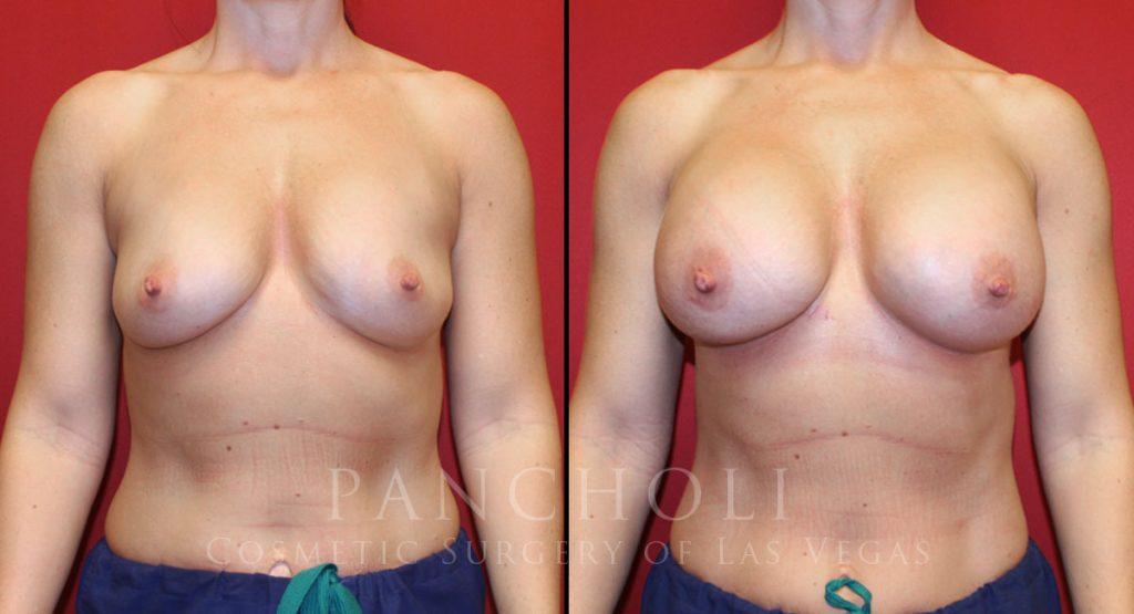 Breast Augmentation 7275