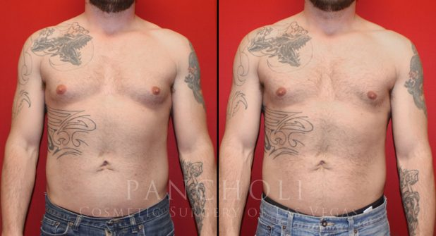 Male Breast Reduction Before and After Gallery