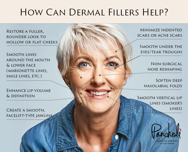 Women - How Can Dermal Fillers Help?
