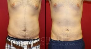 Male Breast Reduction and Liposuction 5765