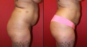 Liposuction 7487