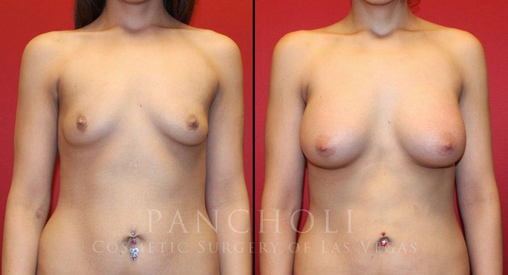 Breast Augmentation 7823
