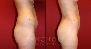 Liposuction 8858