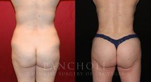 Brazilian Butt Lift, Liposuction and Tummy Tuck 9495