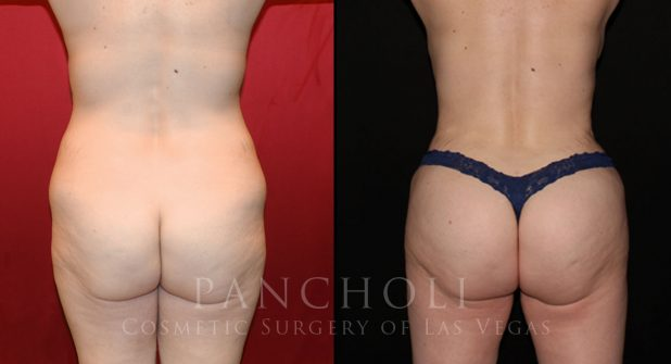 Tummy Tuck Before and After Gallery