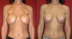 Breast Augmentation and Lift 1747