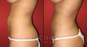 Liposuction 2529