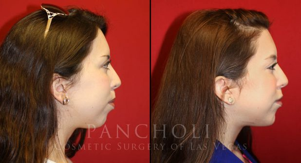 Chin Enhancement Before and After Gallery